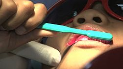 A cute little 5 year old Asian boy gets his teeth brushed at the dentist in Bangkok, Thailand.
