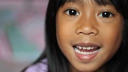 A cute little 5 year old Asian girl wiggles her first loose front tooth.