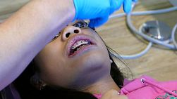 A young teenage Asian girl visits the orthodontist for her regular check up and adjustment appointment in Vancouver, BC.