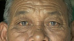 A close up shot of an old Thai man possibly suffering from cataracts in the slums of Bangkok, Thailand.